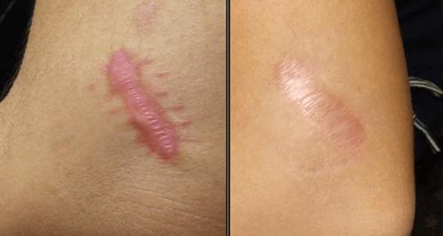 remove cicatrizes